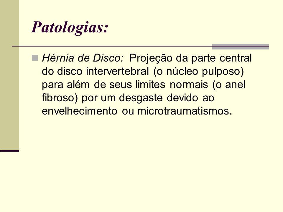 Patologias: Hérnia de Disco: Projeção da parte central do disco intervertebral (o núcleo pulposo) para além de seus limites normais (o anel fibroso) p