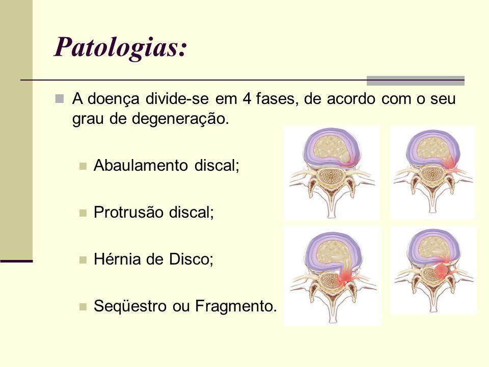 Patologias: A doença divide-se em 4 fases, de acordo com o seu grau de degeneração. Abaulamento discal; Protrusão discal; Hérnia de Disco; Seqüestro o