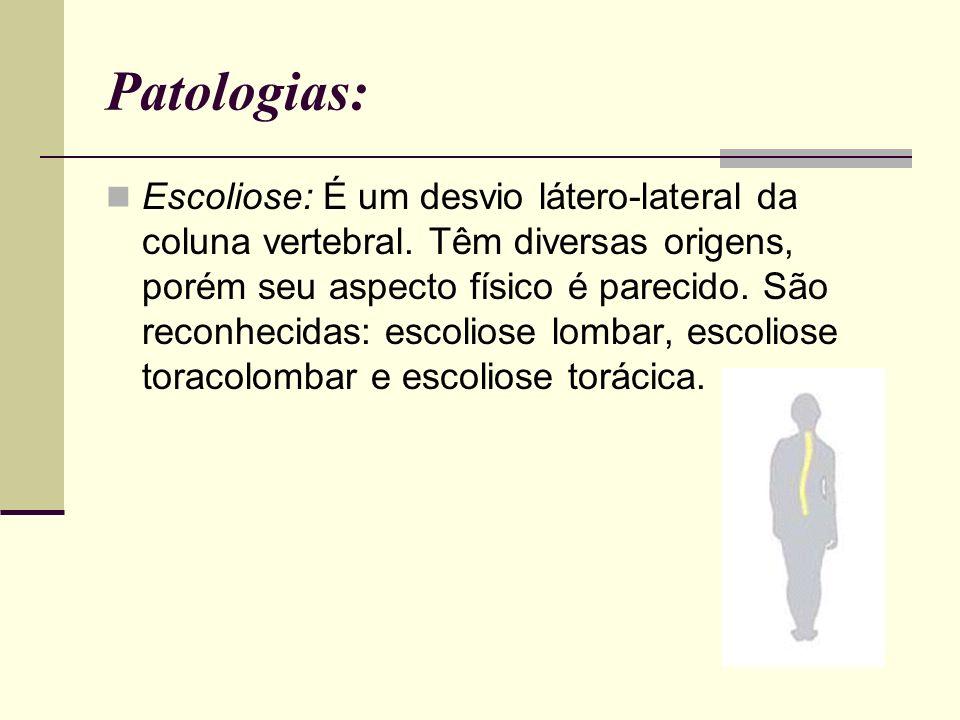 Patologias: Escoliose: É um desvio látero-lateral da coluna vertebral. Têm diversas origens, porém seu aspecto físico é parecido. São reconhecidas: es