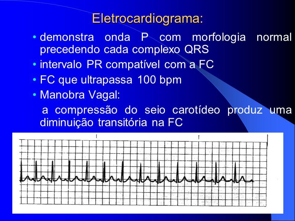 Eletrocardiograma: demonstra onda P com morfologia normal precedendo cada complexo QRS intervalo PR compatível com a FC FC que ultrapassa 100 bpm Mano