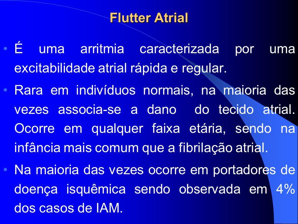 Flutter Atrial É uma arritmia caracterizada por uma excitabilidade atrial rápida e regular. Rara em indivíduos normais, na maioria das vezes associa-s