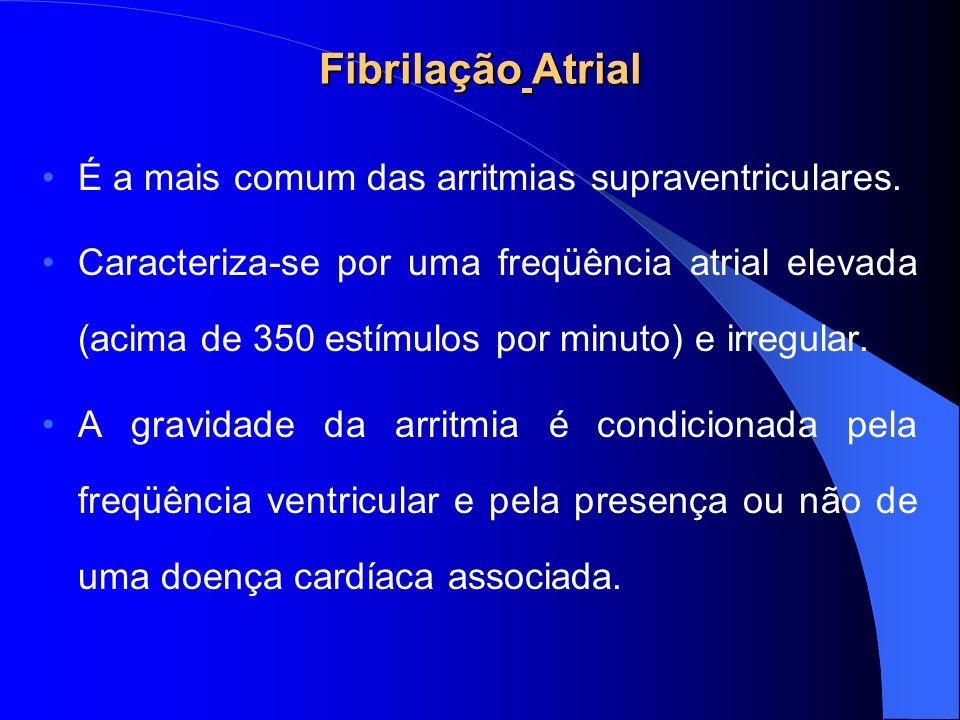 Fibrilação Atrial É a mais comum das arritmias supraventriculares. Caracteriza-se por uma freqüência atrial elevada (acima de 350 estímulos por minuto