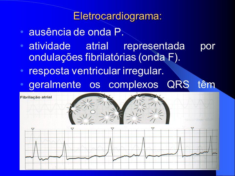 Eletrocardiograma: ausência de onda P. atividade atrial representada por ondulações fibrilatórias (onda F). resposta ventricular irregular. geralmente
