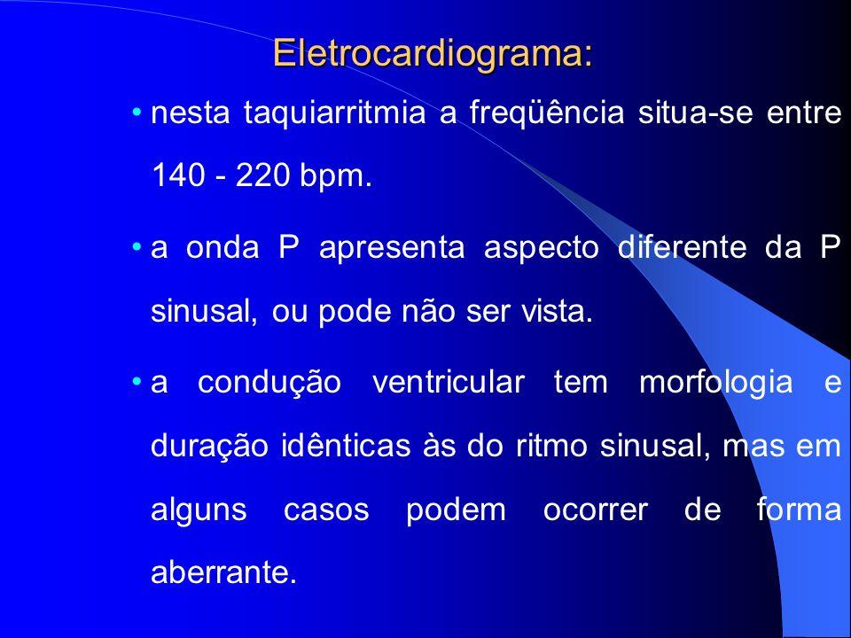 Eletrocardiograma: nesta taquiarritmia a freqüência situa-se entre 140 - 220 bpm. a onda P apresenta aspecto diferente da P sinusal, ou pode não ser v