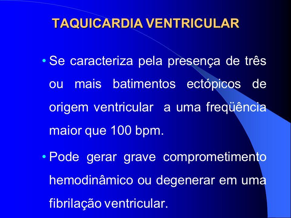 TAQUICARDIA VENTRICULAR Se caracteriza pela presença de três ou mais batimentos ectópicos de origem ventricular a uma freqüência maior que 100 bpm. Po