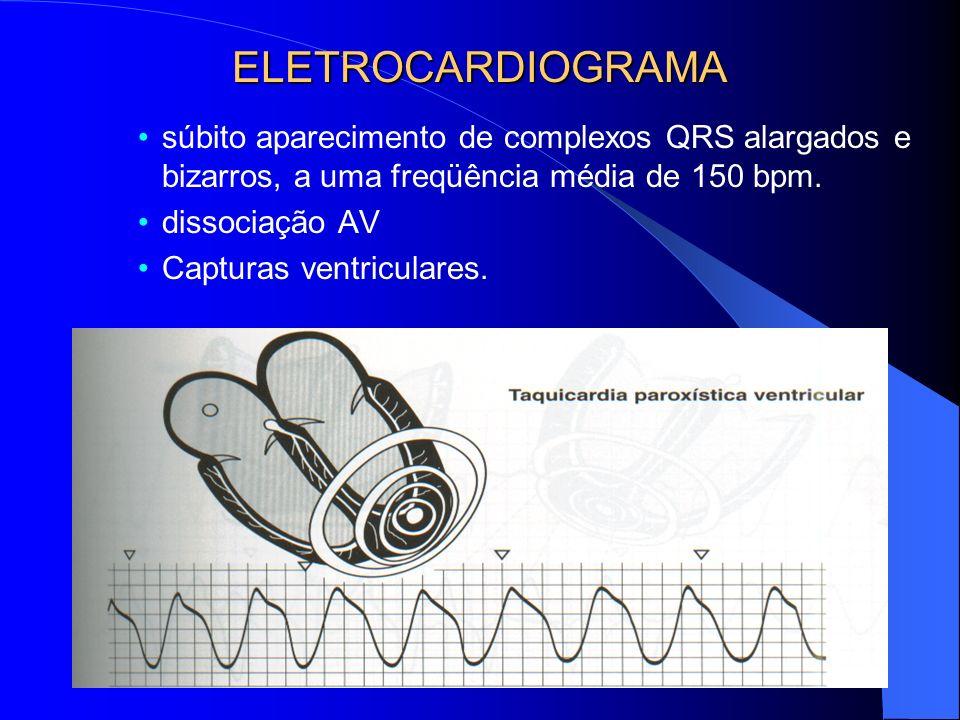 ELETROCARDIOGRAMA súbito aparecimento de complexos QRS alargados e bizarros, a uma freqüência média de 150 bpm. dissociação AV Capturas ventriculares.