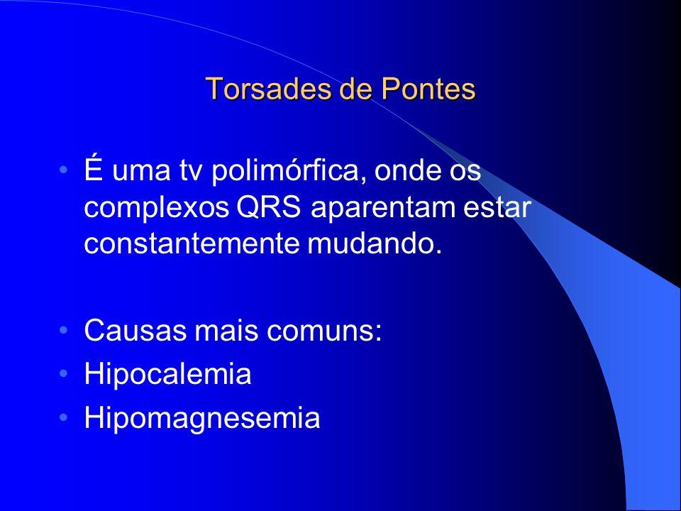 Torsades de Pontes É uma tv polimórfica, onde os complexos QRS aparentam estar constantemente mudando. Causas mais comuns: Hipocalemia Hipomagnesemia