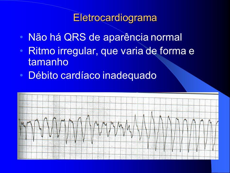Eletrocardiograma Não há QRS de aparência normal Ritmo irregular, que varia de forma e tamanho Débito cardíaco inadequado