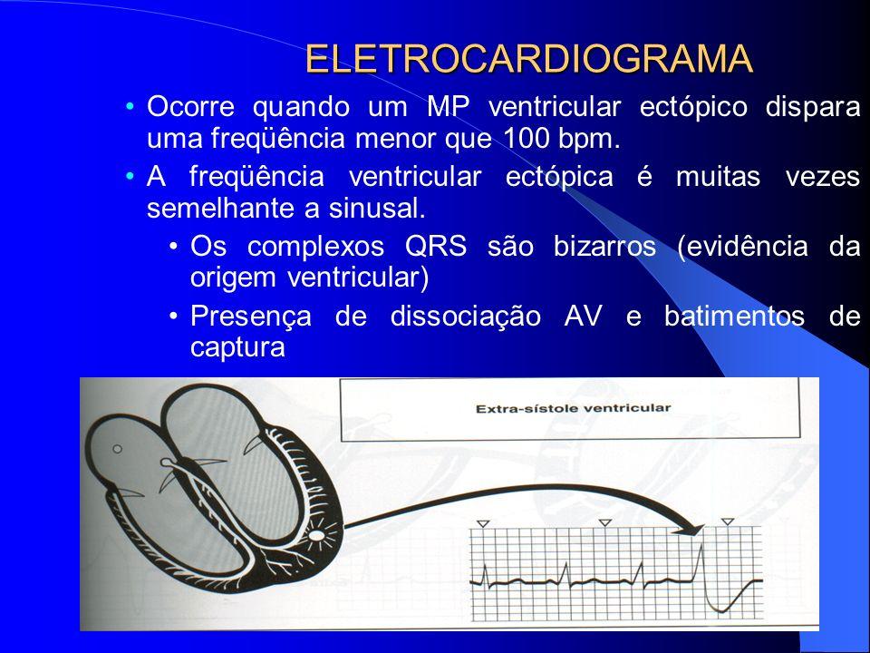 ELETROCARDIOGRAMA Ocorre quando um MP ventricular ectópico dispara uma freqüência menor que 100 bpm. A freqüência ventricular ectópica é muitas vezes