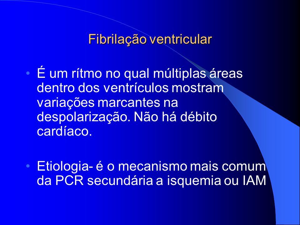 Fibrilação ventricular É um rítmo no qual múltiplas áreas dentro dos ventrículos mostram variações marcantes na despolarização. Não há débito cardíaco