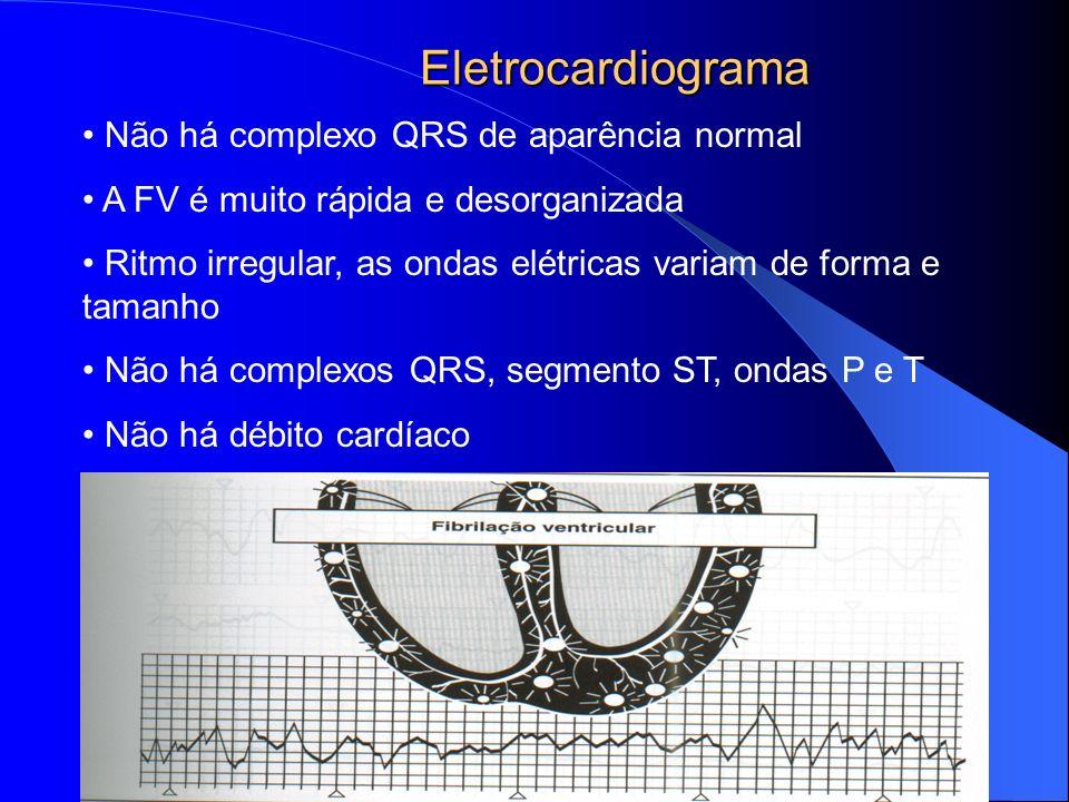 Eletrocardiograma Não há complexo QRS de aparência normal A FV é muito rápida e desorganizada Ritmo irregular, as ondas elétricas variam de forma e ta