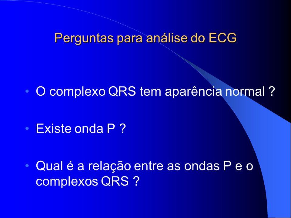 Perguntas para análise do ECG O complexo QRS tem aparência normal ? Existe onda P ? Qual é a relação entre as ondas P e o complexos QRS ?