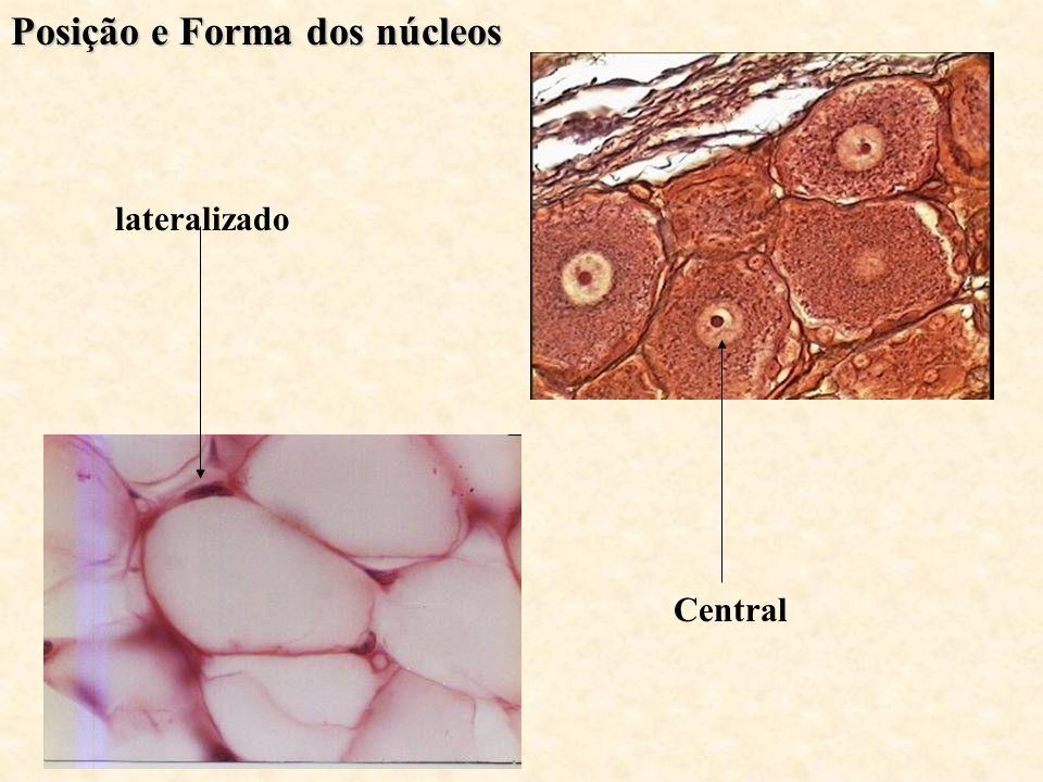lateralizado Central Posição e Forma dos núcleos