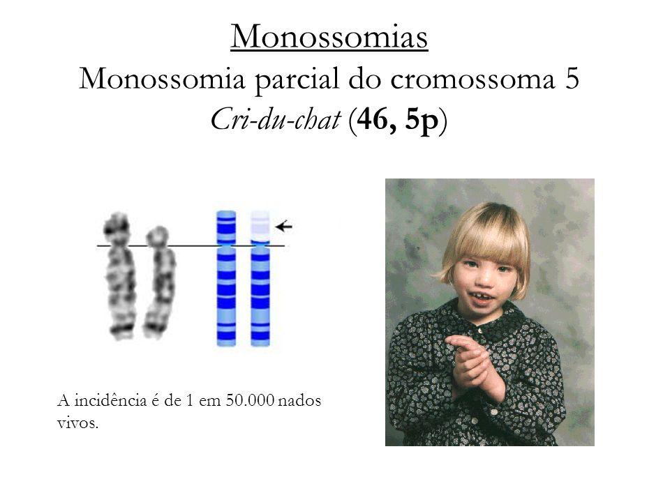Monossomias Monossomia parcial do cromossoma 5 Cri-du-chat (46, 5p) A incidência é de 1 em 50.000 nados vivos.