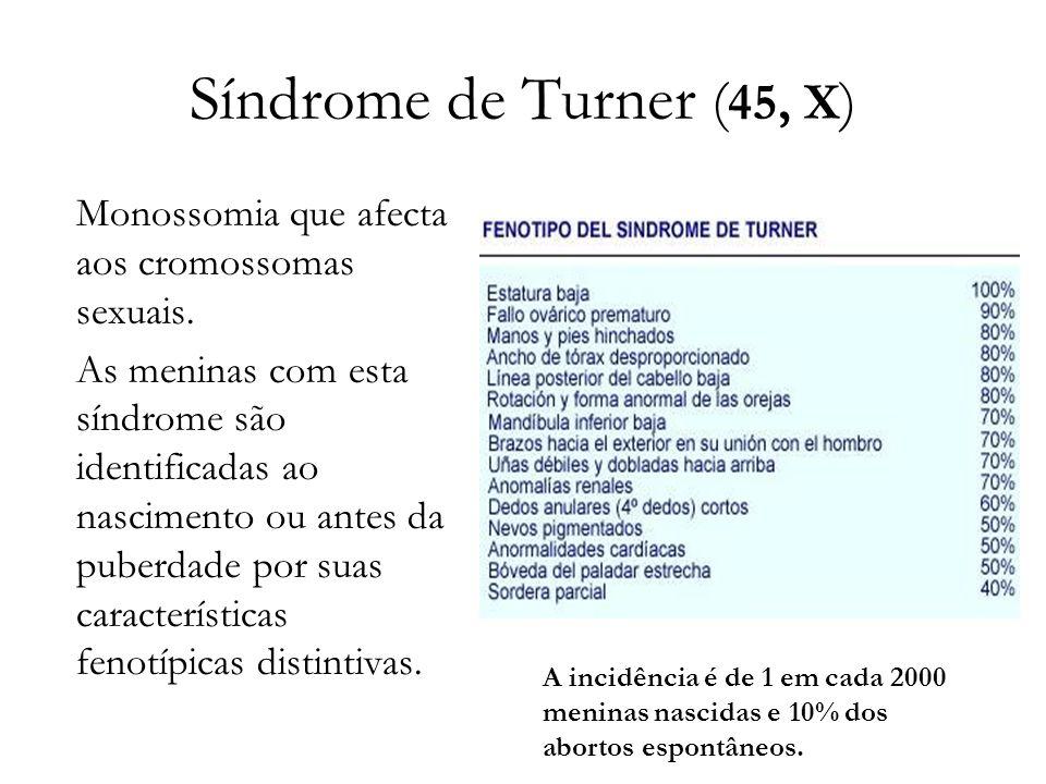 Síndrome de Turner ( 45, X ) Monossomia que afecta aos cromossomas sexuais. As meninas com esta síndrome são identificadas ao nascimento ou antes da p
