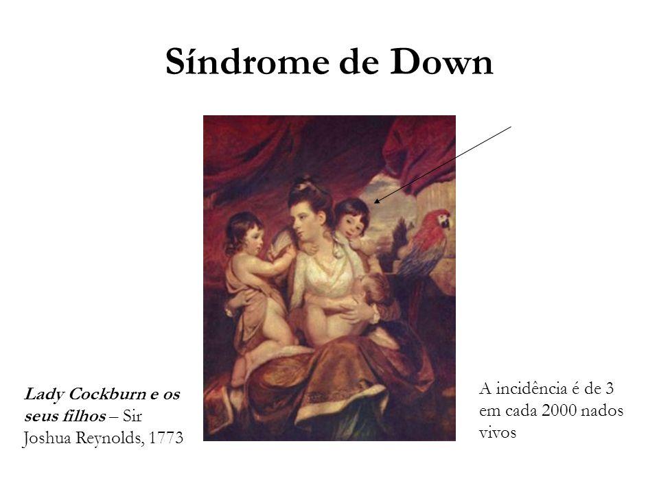 Síndrome de Down Lady Cockburn e os seus filhos – Sir Joshua Reynolds, 1773 A incidência é de 3 em cada 2000 nados vivos