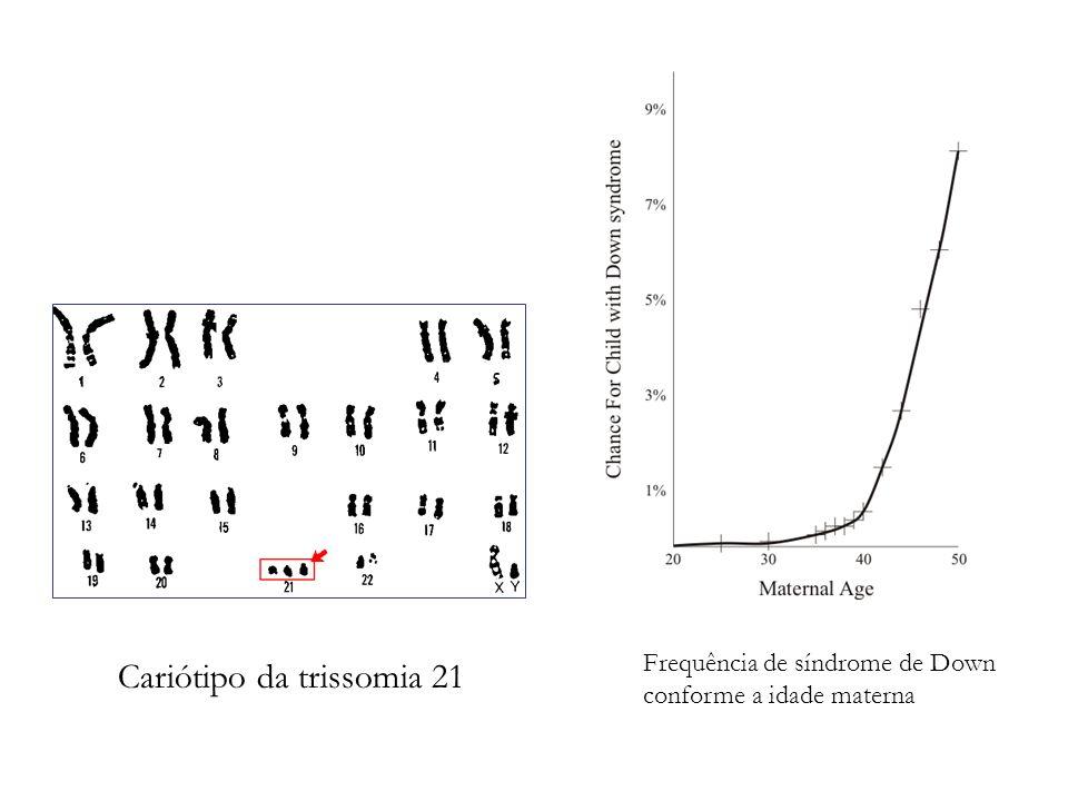 Frequência de síndrome de Down conforme a idade materna Cariótipo da trissomia 21