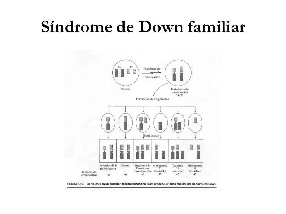 Síndrome de Down familiar