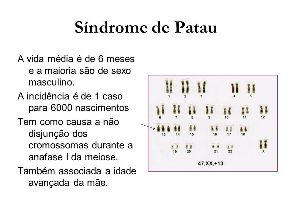 Síndrome de Patau A vida média é de 6 meses e a maioria são de sexo masculino. A incidência é de 1 caso para 6000 nascimentos Tem como causa a não dis