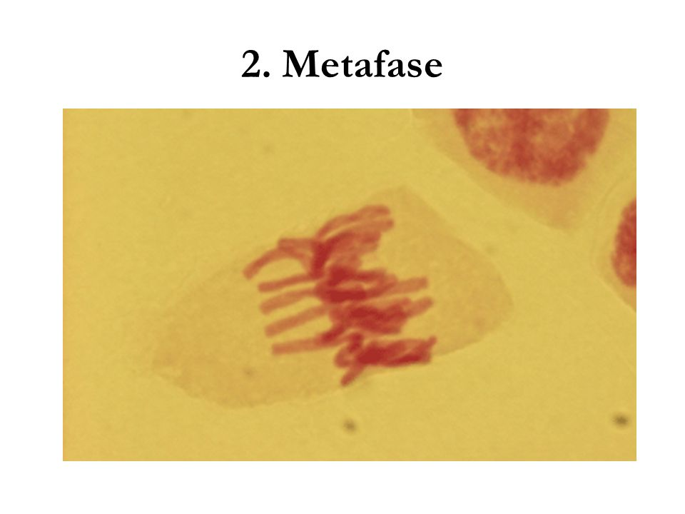 2. Metafase