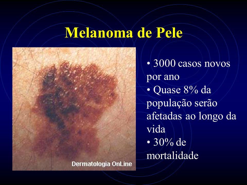 Melanoma de Pele 3000 casos novos por ano Quase 8% da população serão afetadas ao longo da vida 30% de mortalidade