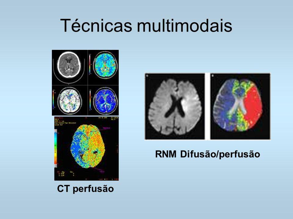 Técnicas multimodais CT perfusão RNM Difusão/perfusão