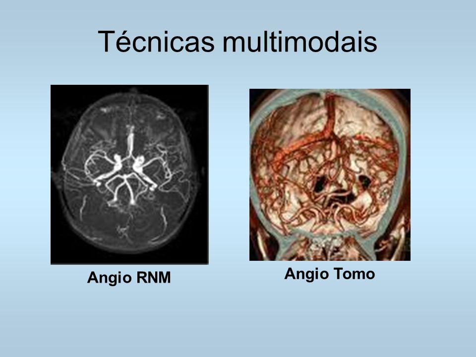 Técnicas multimodais Angio RNM Angio Tomo