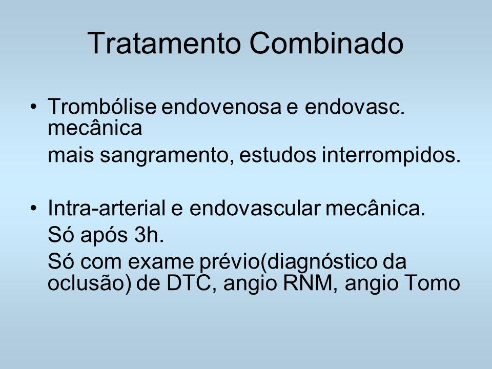 Tratamento Combinado Trombólise endovenosa e endovasc.