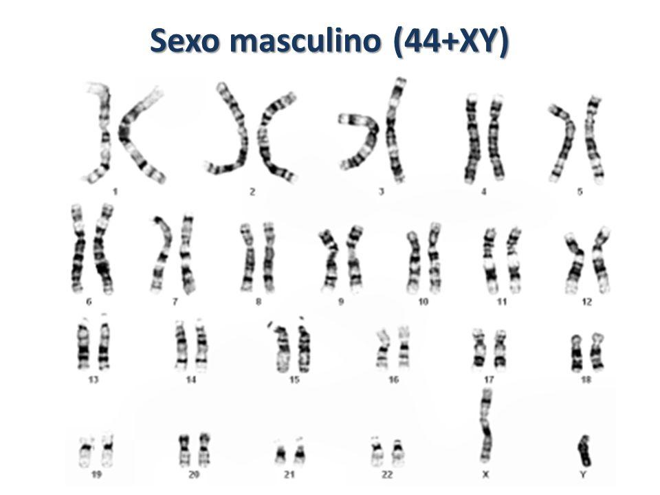 Sexo feminino (44+XX)