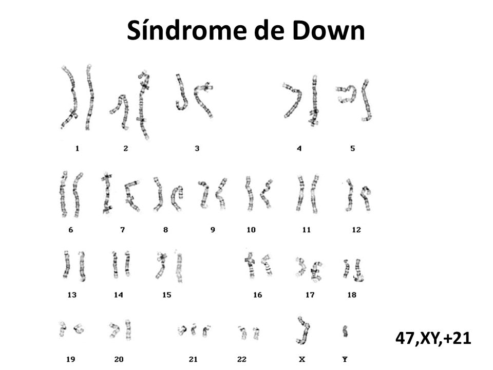 47,XY,+21 Síndrome de Down