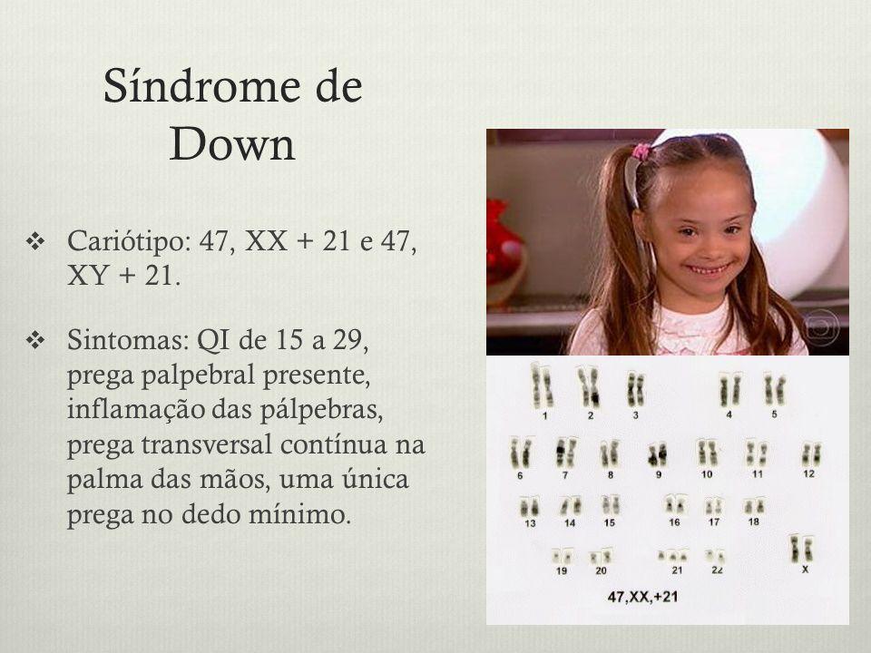 Síndrome de Down Cariótipo: 47, XX + 21 e 47, XY + 21. Sintomas: QI de 15 a 29, prega palpebral presente, inflamação das pálpebras, prega transversal