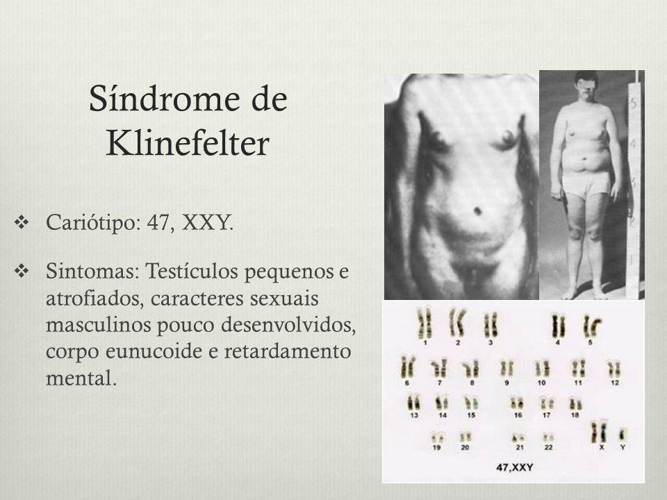Síndrome de Klinefelter Cariótipo: 47, XXY. Sintomas: Testículos pequenos e atrofiados, caracteres sexuais masculinos pouco desenvolvidos, corpo eunuc