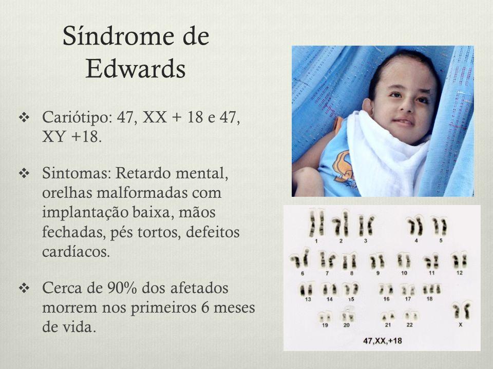 Síndrome de Edwards Cariótipo: 47, XX + 18 e 47, XY +18. Sintomas: Retardo mental, orelhas malformadas com implantação baixa, mãos fechadas, pés torto