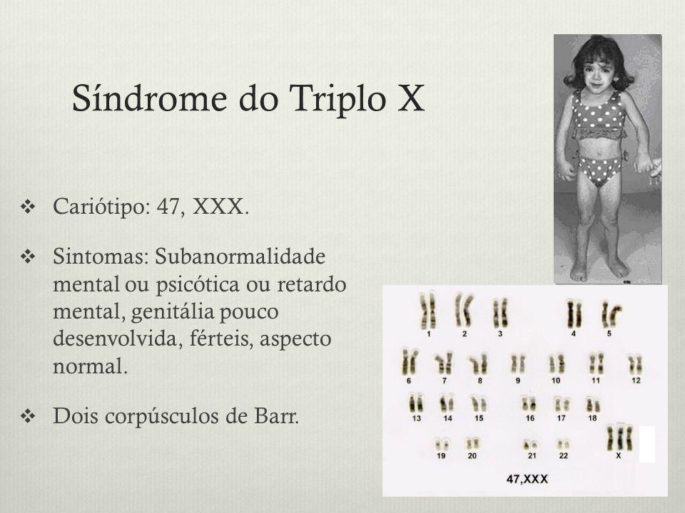 Síndrome do Triplo X Cariótipo: 47, XXX. Sintomas: Subanormalidade mental ou psicótica ou retardo mental, genitália pouco desenvolvida, férteis, aspec