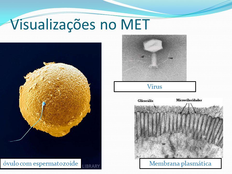 A célula observada ao Microscópio eletrônico A partir de 1950, a pesquisa biológica começa o estudo mais detalhado da célula, pela invenção do microsc