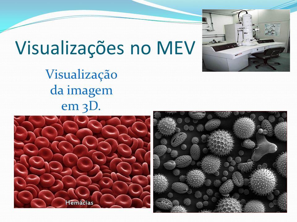 Bactérias (unicelulares)