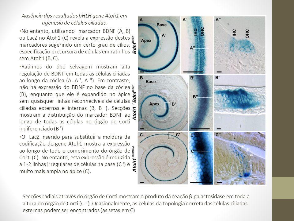 Ausência dos resultados bHLH gene Atoh1 em agenesia de células ciliadas.