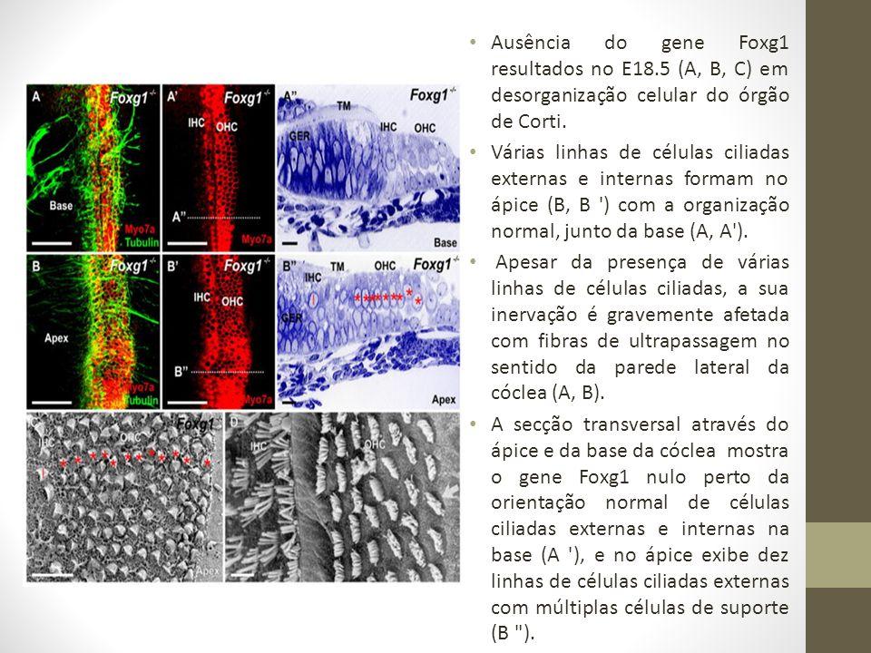Ausência do gene Foxg1 resultados no E18.5 (A, B, C) em desorganização celular do órgão de Corti.