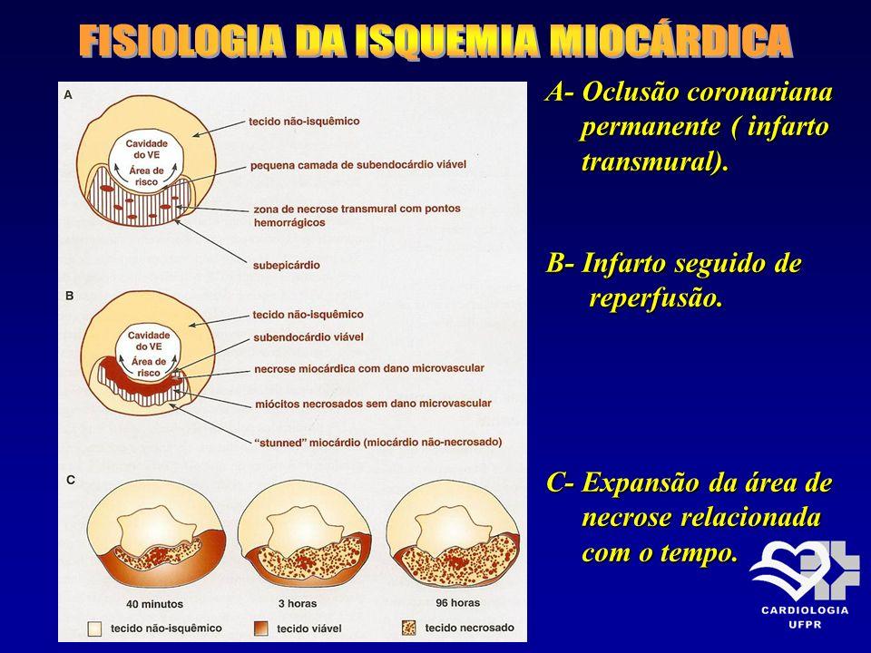 A- Oclusão coronariana permanente ( infarto permanente ( infarto transmural). transmural). B- Infarto seguido de reperfusão. reperfusão. C- Expansão d