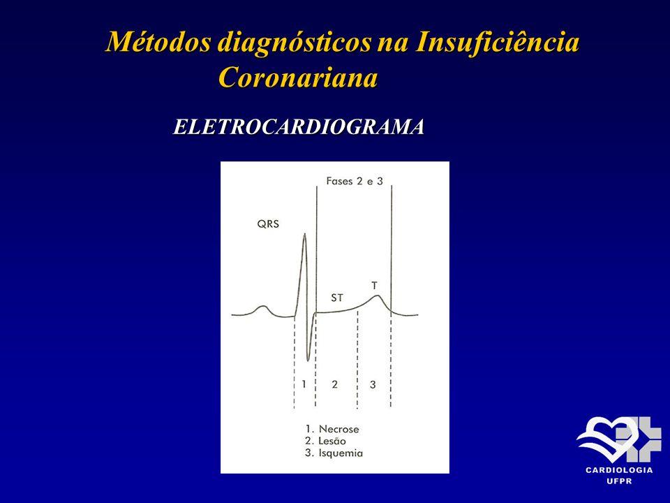 Métodos diagnósticos na Insuficiência Métodos diagnósticos na Insuficiência Coronariana Coronariana ELETROCARDIOGRAMA