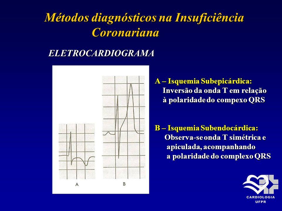Métodos diagnósticos na Insuficiência Métodos diagnósticos na Insuficiência Coronariana Coronariana ELETROCARDIOGRAMA A – Isquemia Subepicárdica: Inve
