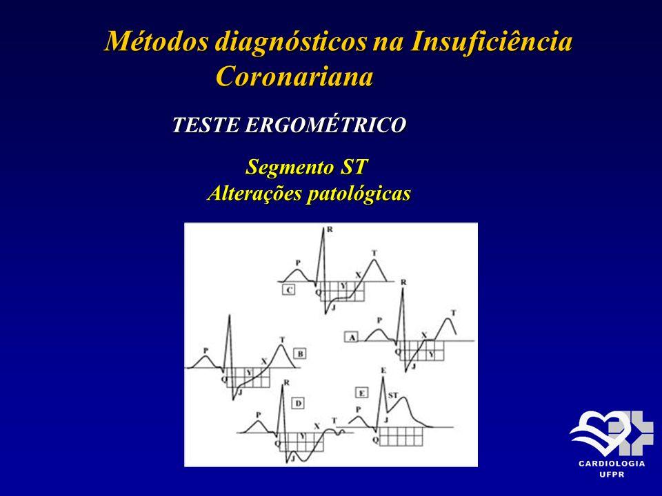Métodos diagnósticos na Insuficiência Métodos diagnósticos na Insuficiência Coronariana Coronariana TESTE ERGOMÉTRICO Segmento ST Alterações patológic