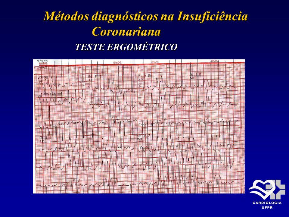 Métodos diagnósticos na Insuficiência Métodos diagnósticos na Insuficiência Coronariana Coronariana TESTE ERGOMÉTRICO
