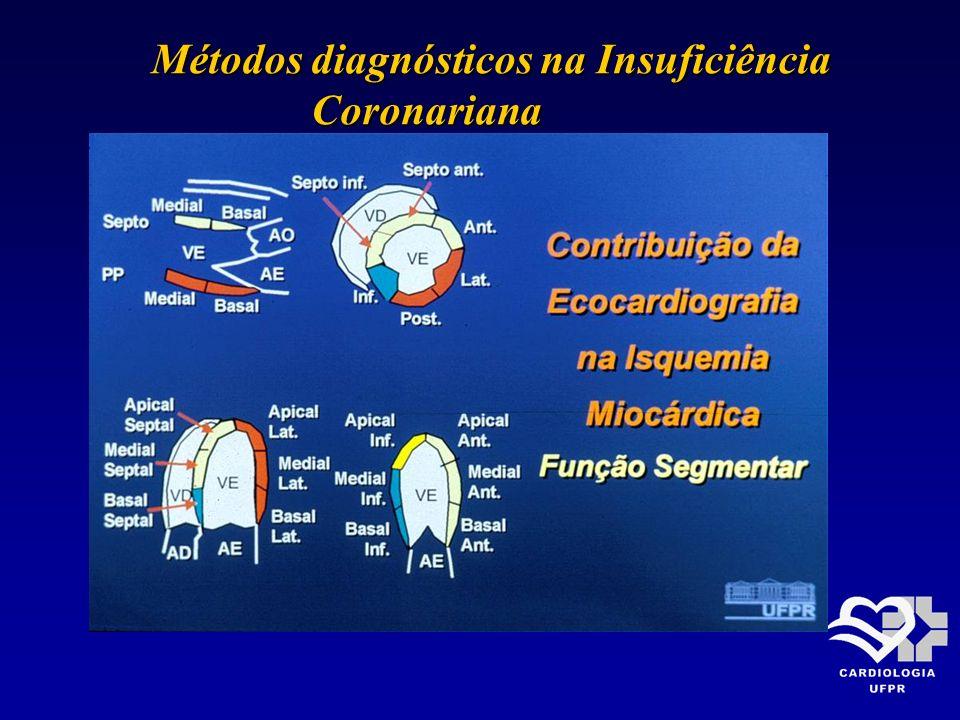 Métodos diagnósticos na Insuficiência Métodos diagnósticos na Insuficiência Coronariana Coronariana