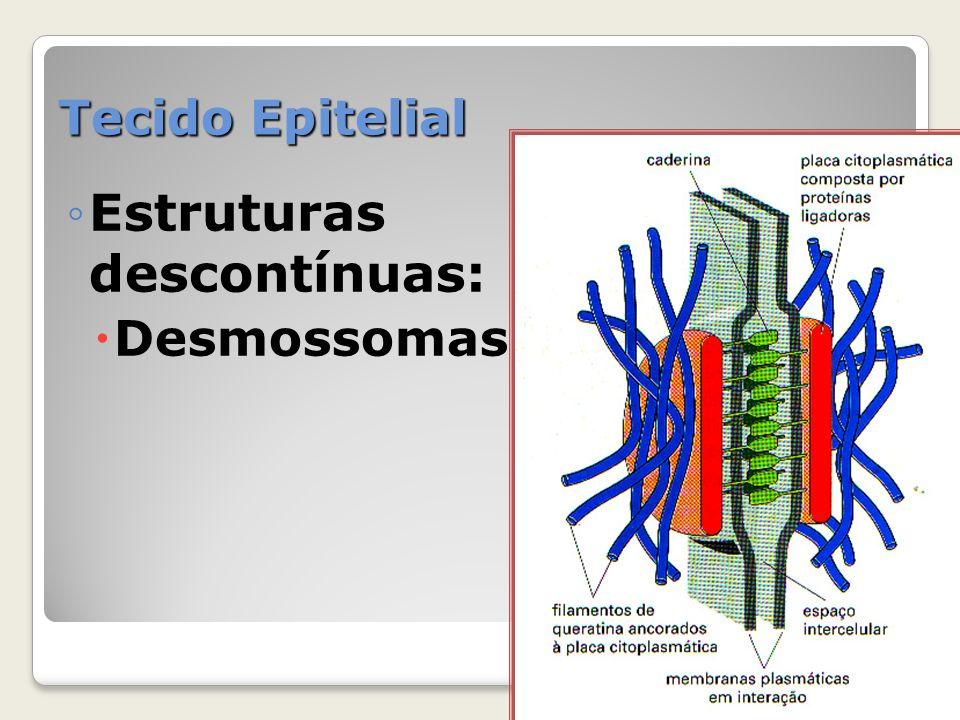 Tecido Epitelial Estruturas descontínuas: Desmossomas