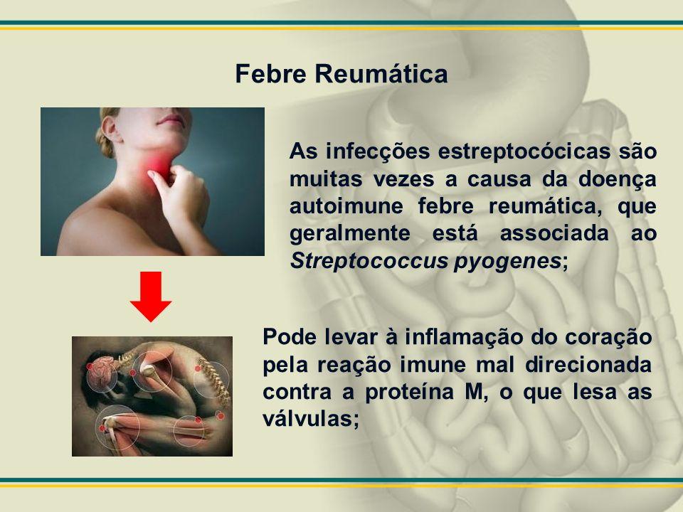 Febre Reumática As infecções estreptocócicas são muitas vezes a causa da doença autoimune febre reumática, que geralmente está associada ao Streptococ
