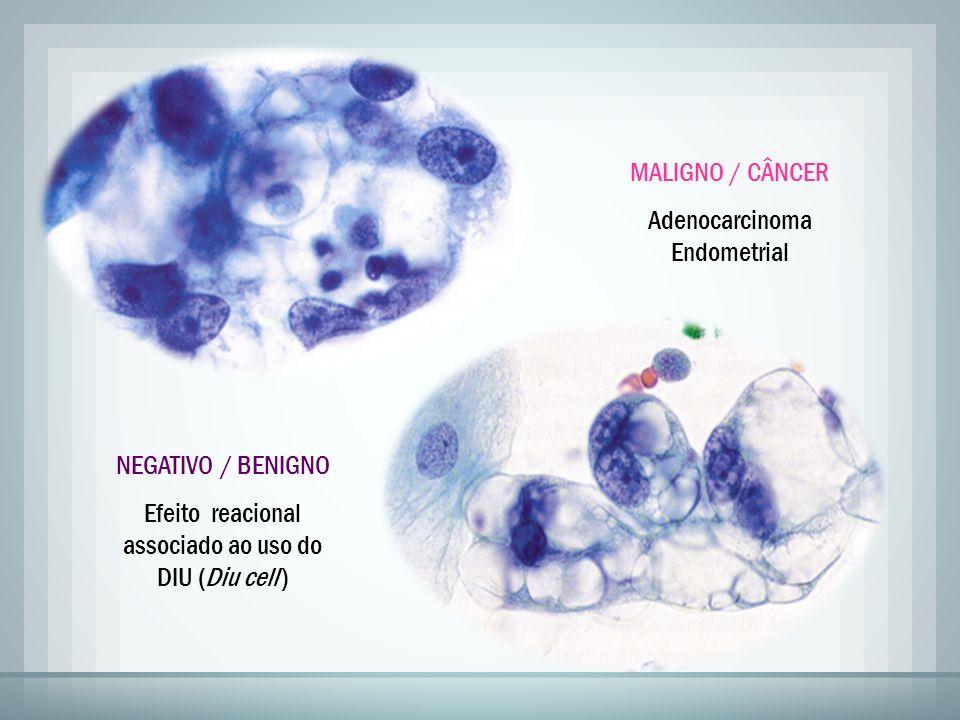 MALIGNO / CÂNCER Adenocarcinoma Endometrial NEGATIVO / BENIGNO Efeito reacional associado ao uso do DIU (Diu cell )