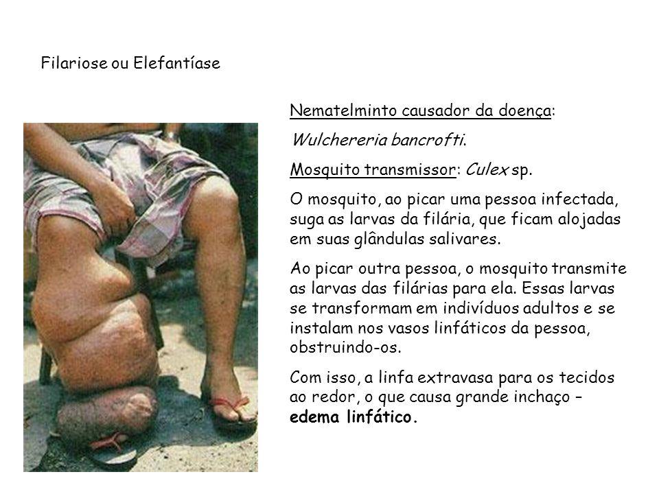 Filariose ou Elefantíase Nematelminto causador da doença: Wulchereria bancrofti. Mosquito transmissor: Culex sp. O mosquito, ao picar uma pessoa infec