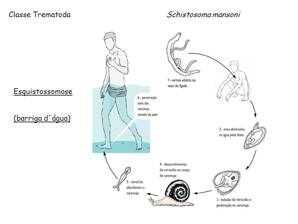 Esquistossomose (barriga d´água) Classe Trematoda Schistosoma mansoni