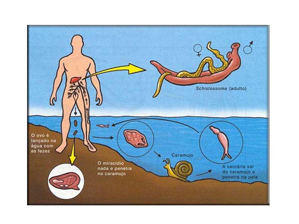 Ovo do Schistosoma mansoni Cercária Menino com esquistossomose